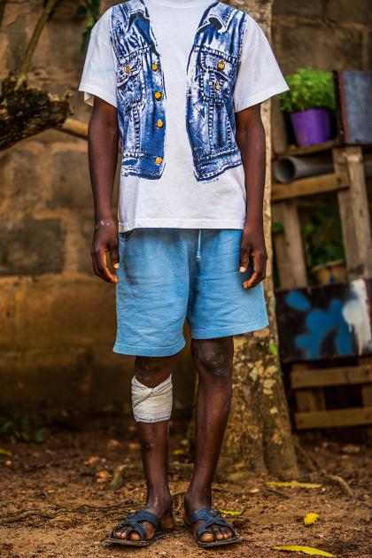 A mais velha, de 8 anos, usa uma atadura na perna direita para tratar a queimadura feita pelos fazendeiros que a escravizavam. (Fellipe Abreu/Superinteressante)
