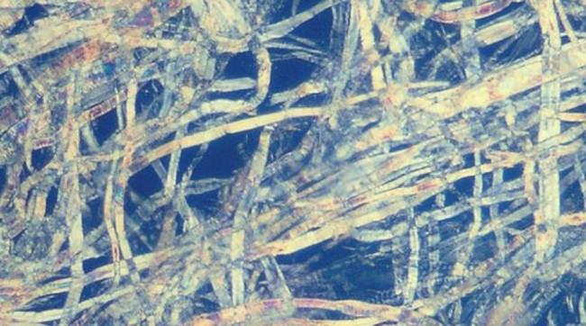 Enzimas celulases e xilanases, misturadas em diferentes proporções, podem atuar tanto no refino da fibra virgem de celulose quanto no de celulose proveniente do papel reciclado (imagem: Wikimedia Commons)