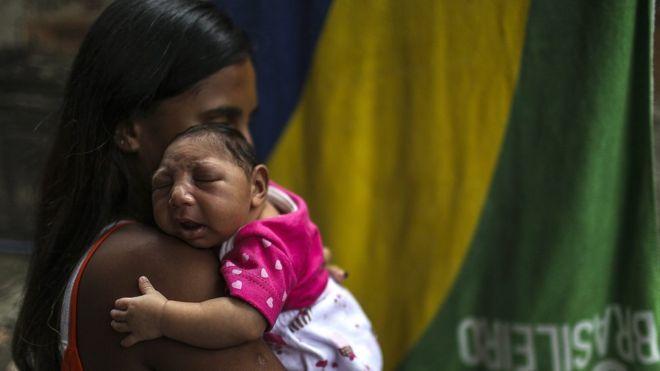 Brasil teve até agosto 1845 casos confirmados de bebês nascidos com malformações congênitas (imagem EPA)