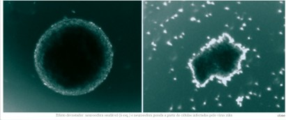 Efeito devastador: neuroesfera saudável (à esq.) e neuroesfera gerada a partir de células infectadas pelo vírus zika( © PATRICIA GARCEZ / UFRJ E IDOR)